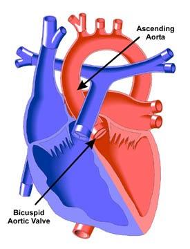 Cuspidi aortiche