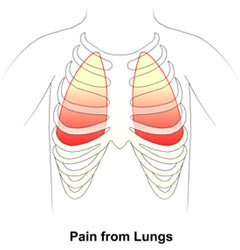 Pain from Lungs