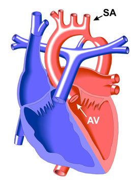 Coarctation of the Aorta | Congenital Heart Disease - Cove Point ...