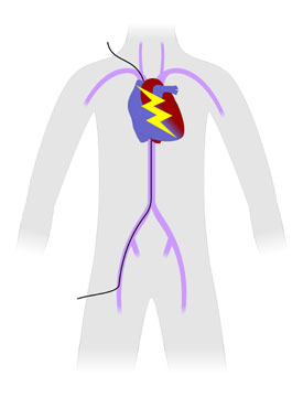 The Electrophysiology (EP) Study Procedure, Heart and ...