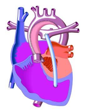 Hypoplastic Left Heart Syndrome Congenital Heart Disease Cove Point Foundation Johns Hopkins Children S Hospital