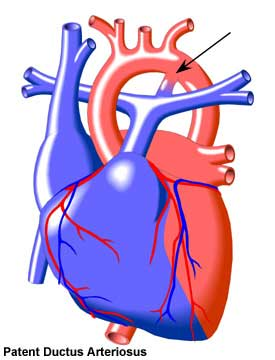 Think, Ductus arteriosus patent adult join told