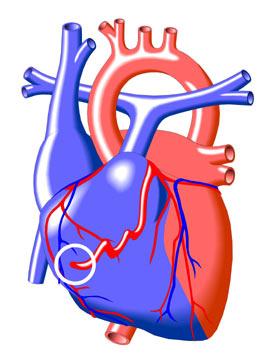 Fstula de la Arteria Coronaria  Congenital Heart Disease  Cove