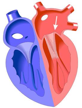 Prolapso Valvular Mitral Congenital Heart Disease Cove